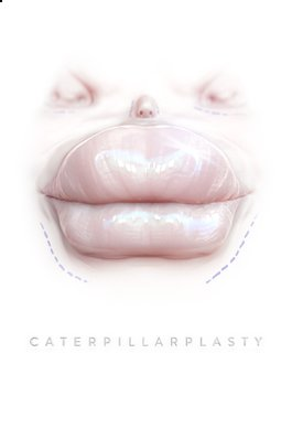 Caterpillarplasty