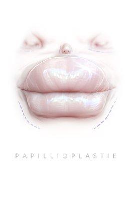 Papillioplastie