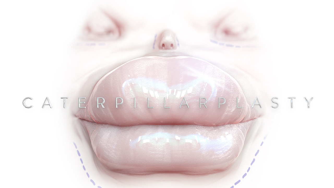 Caterpillarplasty